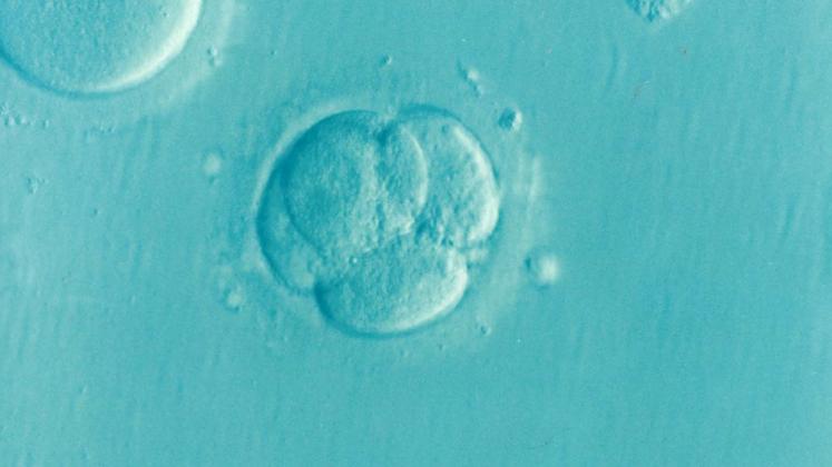 Human_Embryo